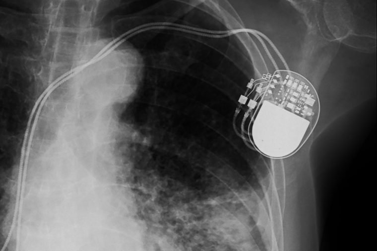 5 Medical Devices You Didn't Know Could Be Hacked